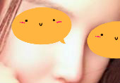 垫鼻梁+鼻翼缩小前后对比图分享:改变长相从鼻子开始