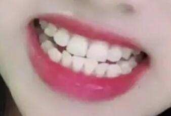 超声波洁牙的效果展示,牙齿更健康更白了