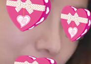 现代医美改善的歪鼻子的效果展示:好直,好挺,真值了