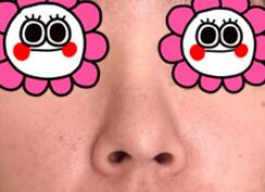 鼻头肥圆+鼻部扁平 隆鼻半个月的效果展示