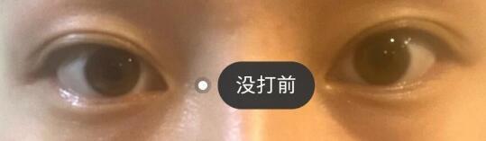广州玻尿酸填充泪沟体验日记 术后三个月恢复效果大曝光