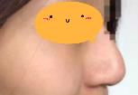 鼻再造案例,做鼻子60天,效果特别满意,侧颜气质爆棚