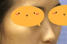 耳軟骨隆鼻前后效果曝光,宛若天生,簡直美貌加倍,有圖有真相