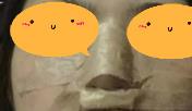 全新隆鼻案例+效果图一览:术后第36天气质爆棚,一波男神来约我
