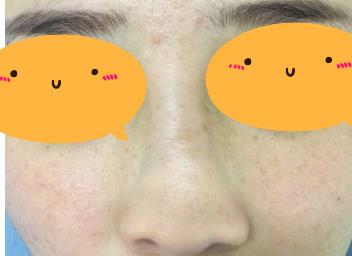 隆鼻整形细节+90天变化效果图一览,术后3个月侧颜简直无敌,美腻