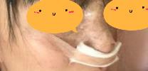隆鼻术后看前后图片,差别超大,面部五官轮廓变漂亮了