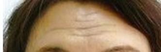 注射玻尿酸除皺真人案例效果圖 醫美除皺真的比面膜管用多了