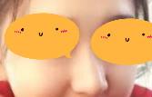 驼峰鼻矫正第7天恢复图片分享:鼻子不凸了