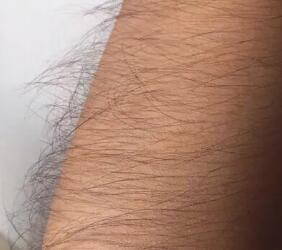 又硬又黑的手毛,冰点脱毛后光滑滑的