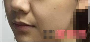 脸上出现了皱纹让小姐姐变得很苍老 做完玻尿酸除皱顺变女神