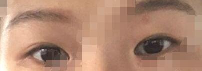 医美开眼角整形手术摆脱小眼睛真人案例 术后三个月眼睛非常明亮