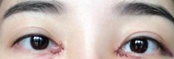 开眼角手术真人案例 术后眼睛恢复得很美丽 美照来一波