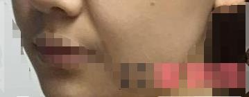 脸上出现皱纹让美女显得很苍老 做了玻尿酸除皱后肤色越来越好了