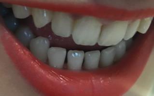 戴牙套脸型半年变化图,要拔掉4颗牙齿才能够矫正,太痛了