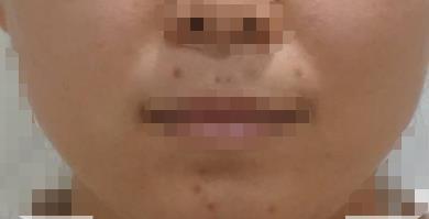 斑长在脸上就很难受 小姐姐做了激光祛斑之后皮肤白了很多