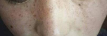 美眉因脸部痣较多影响美观 做了激光祛痣后皮肤变嫩了好多