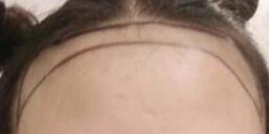 小姐姐额头大为了改变发际线 做了发际线种植后任何发型都合适了