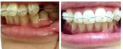 牙齿矫正术后670天效果图公布,牙齿变得特别的整齐,有美感