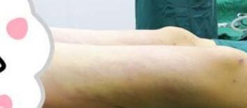 四个月大腿吸脂效果体验案例
