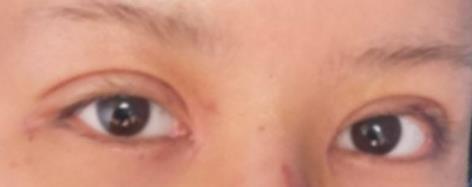 小姐姐想做双眼皮