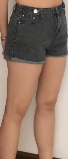 术后四个月性感身材恢复效果案例 大腿吸脂让变得更加自信+美照