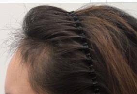 3d植发效果图分享一波,头发长得很不错,而且也很自然哦