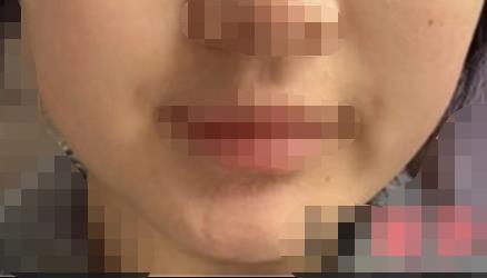 脸宽大不对称 小姐姐做下颌角手术后脸轮廓柔多了