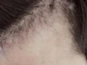 植发术后十几天满头黑发更显精神饱满,从油腻大叔变成大帅哥了