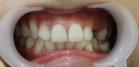 不整齊的牙齒很苦惱 做了牙齒矯正后擁有漂亮的牙齒