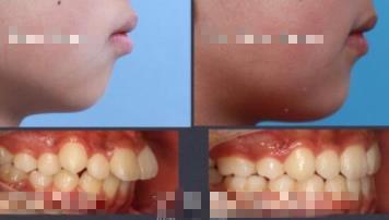 小孩暴牙矯正恢復圖片分享:揭秘小孩暴牙矯正全過程
