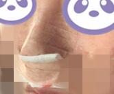 鼻根低做了隆鼻手術,變化不止一點點