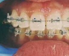 正畸變化效果,齙牙問題改善視覺沖擊力強