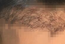 種植了2000多個毛囊,好禿好禿了