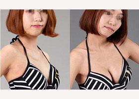 南宁美丽在造美容整形诊所韩式隆胸